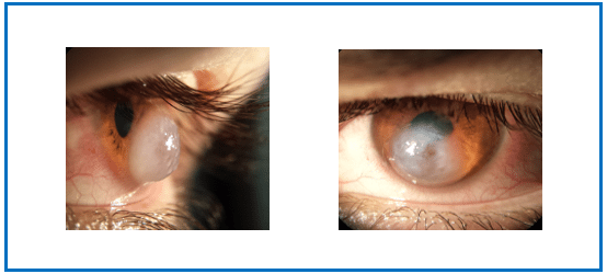 Corneas swollen from Keratoconus